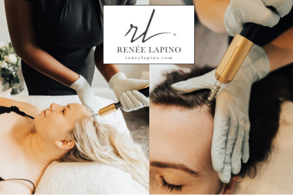 Neville-mesotherapy-renee-lapino-clinic