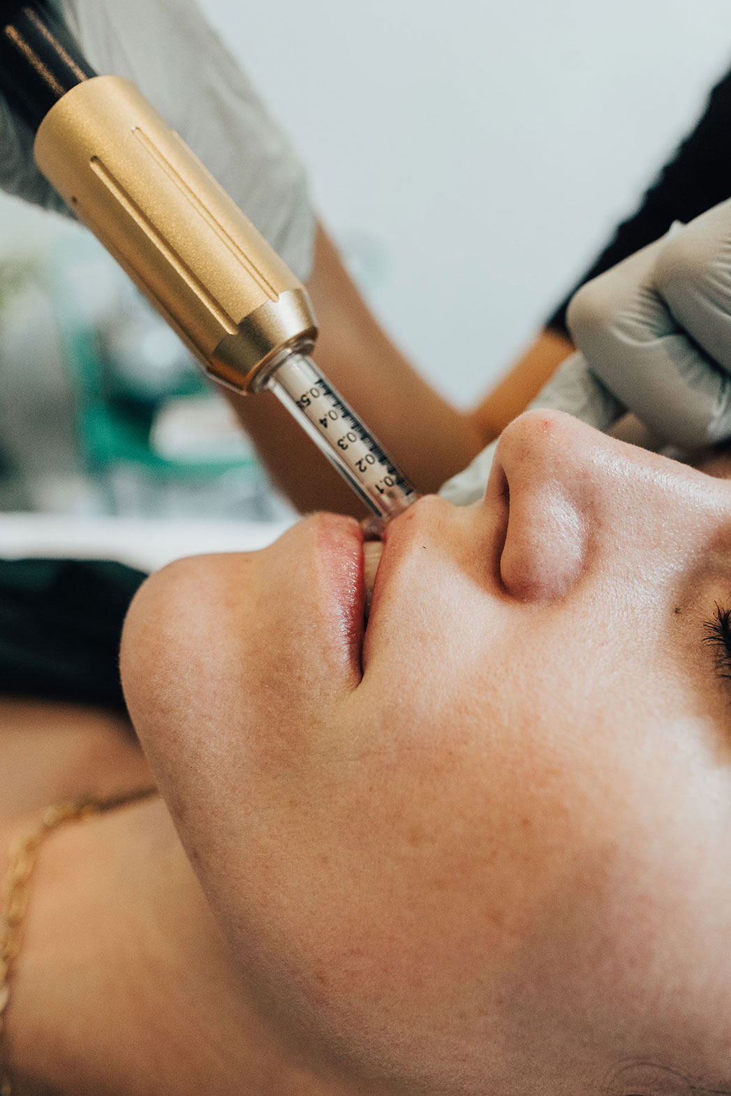 Lip-de-la-crème Mesotherapy treatment